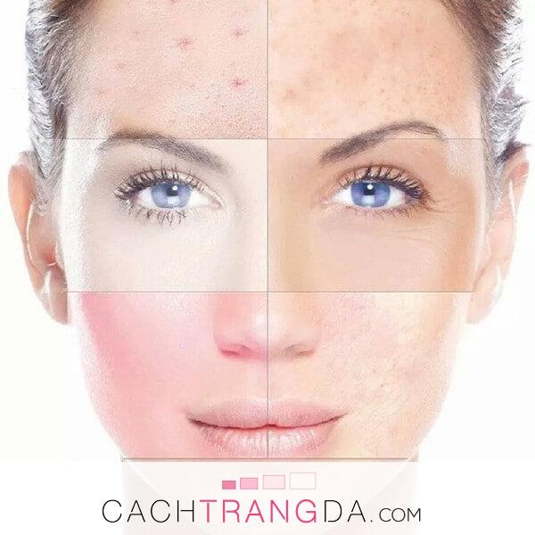 5 Loại da và cách chăm sóc da tốt nhất bạn gái phải hiểu rõ
