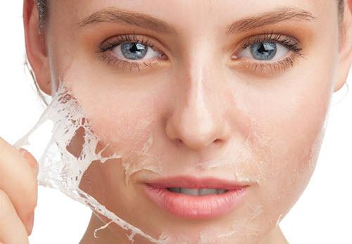 Nên chọn đúng sữa rửa mặt cho da mụn để tráng cho da không bị khô và nứt nẻ