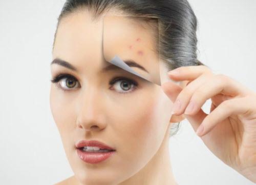 Nên điều trị sẹo và thâm sau khi da không còn mụn