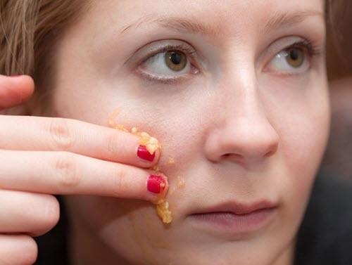 Cách làm kem dưỡng da cho da nhờn từ Mật ong