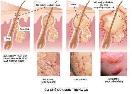 dưỡng chất trong kem trị mụn white doctors giúp se khích lỗ chân lông