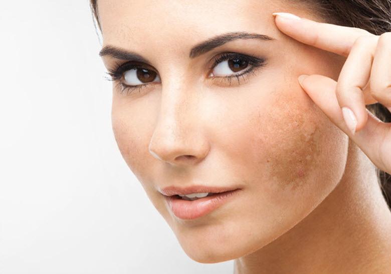 Phương pháp trị nám da và tàn nhang