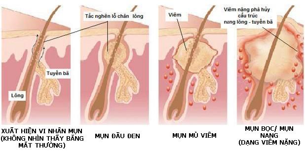 Mách bạn cách nhận biết các loại mụn và cách điều trị phù hợp cho từng loại mụn