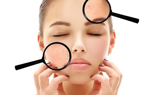 Làm cách nào để da mặt sạch mụn, hết nhờn chỉ trong thời gian ngắn?