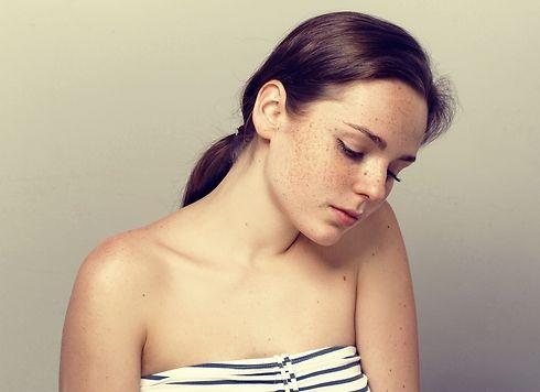 Cách làm mặt nạ trị nám da tại nhà đơn giản nhất