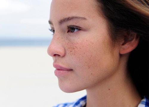 4 Cách làm mặt nạ trị nám da tự nhiên và hiệu quả nhất