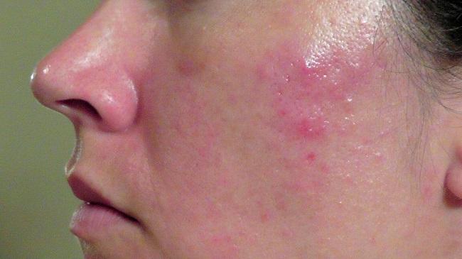 Mụn bọc thường sưng to, đỏ và gây đau nhức