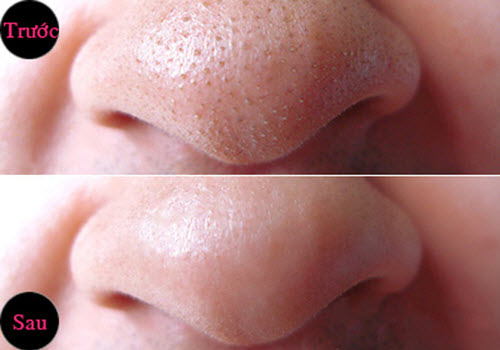 Cách trị mụn đầu đen trên mũi hiệu quả chỉ sau 1 đêm giúp bạn thay đổi nhanh chóng