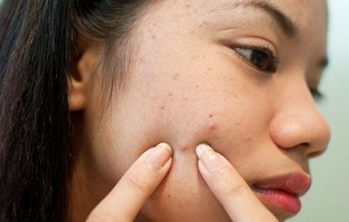Hướng dẫn bạn cách trị mụn dưới da hiệu quả cực nhanh