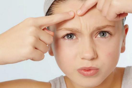 Mụn trứng cá thường gây ảnh hưởng không nhỏ đến thẩm mỹ và làn da của bạn