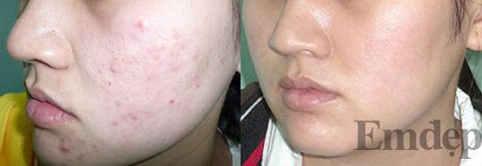 Sau khi chia sẻ cách này cho người bạn, sau 5 ngày điều trị, mặt bạn ấy đã giảm mụn đáng kể
